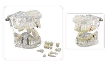 Demonstrationsmodell für Zahnerkrankungen & Lösungen